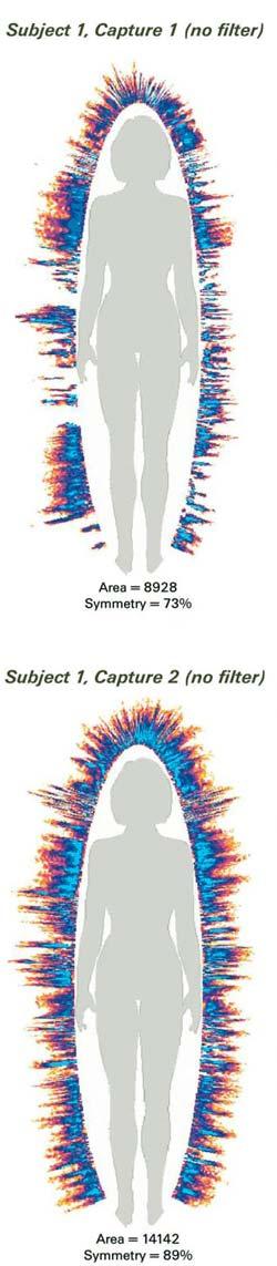 Aufnahmen eines Menschen mit GDV Kamera - Man sieht die Aura vor und nach einer Reconnective Healing Behandlung. Nachher ist sie sehr viel ausgeglichener.